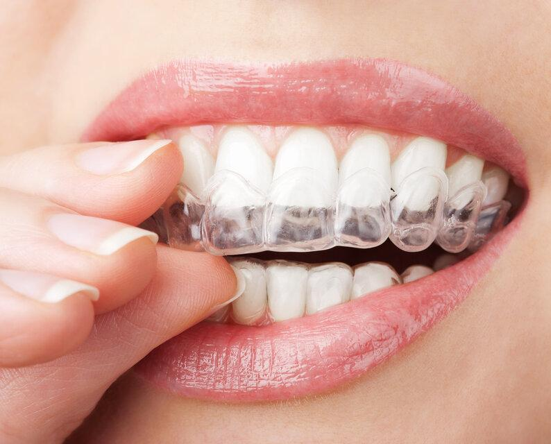 close up of woman using clear braces